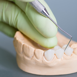 Dentist prodding model of teeth