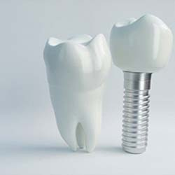 Various types of dental implants with blue background