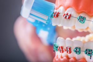 model of a mouth with braces brushing teeth