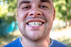 a person smiling to show their chipped tooth
