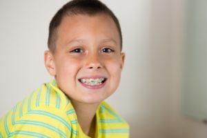 Young boy needing braces for children