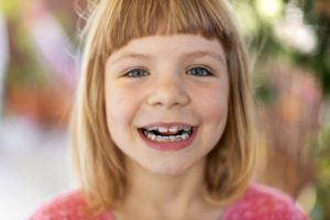 child wearing braces with baby teeth